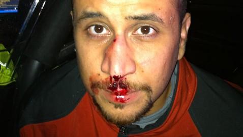 Does New Photo Prove Trayvon Martin Killing Was Self-Defense?