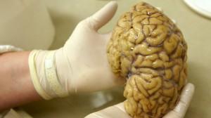brain-scan.si